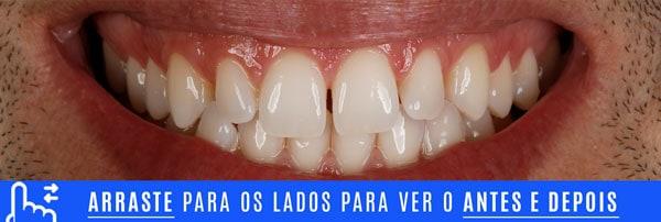 SORRISO INICIAL dentes pequenos aumento com lentes de contato dentais