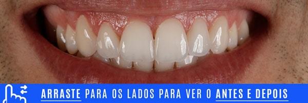 SORRISO final dentes pequenos aumento com lentes de contato dentais