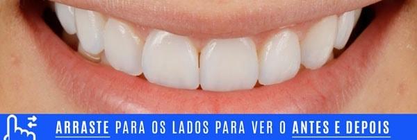 Sorriso FINAL DENTES TORTOS tratamento com laminados ceramicos