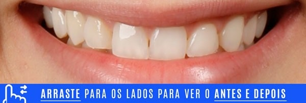 Sorriso INICIAL DENTES TORTOS tratamento com laminados ceramicos