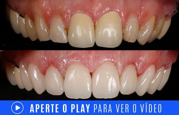 VIDEO antes e depois dentes com resinas escuras ou envelhecidas