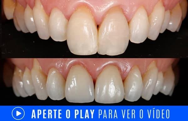 Tratamento para dentes grandes com lentes dentais