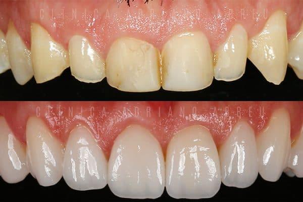 Antes e depois de tratamento de dentes desgastados com Lentes de Contato Dentais