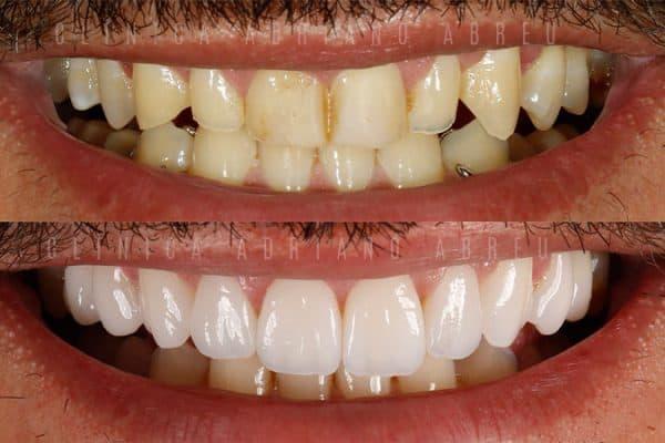 antes-e-depois-dentes-desgastados-e-envelhecidos-sorriso