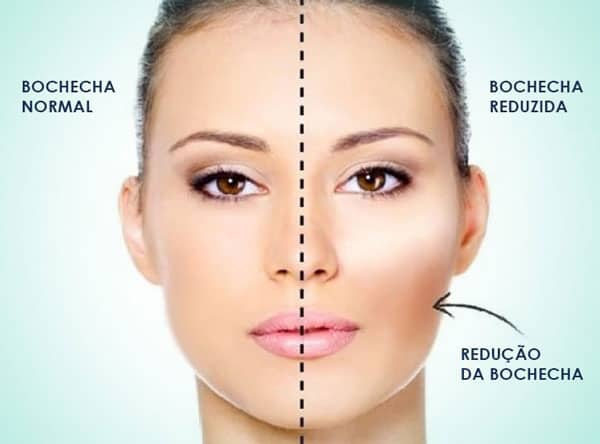 bichectomia clinica adriano abreu odontologia estetica