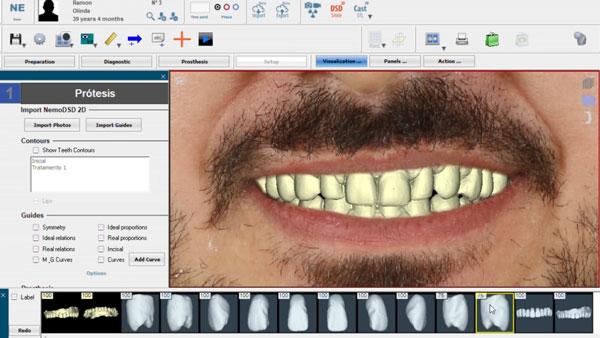 dentes-desgastados-e-envelhecidos-captura-da-boca-em-odontologia-3d