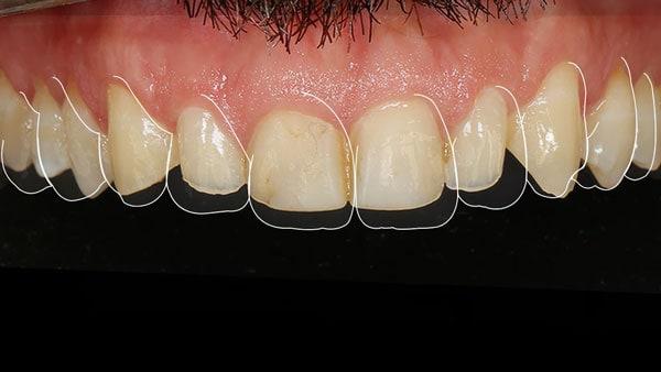 dentes-desgastados-e-envelhecidos-digital-smile-design