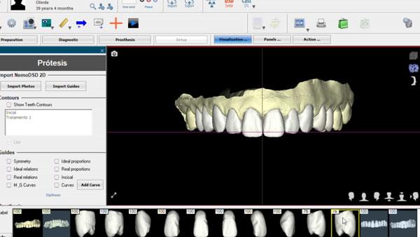 dentes-desgastados-e-envelhecidos-lentes-de-contato-dentais-em-odontologia-3d