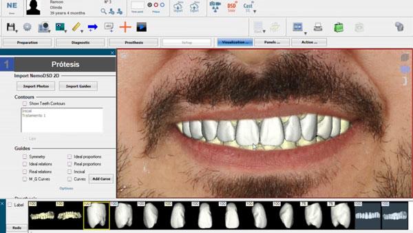 dentes-desgastados-e-envelhecidos-projeto-em-odontologia-3d