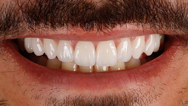 dentes desgastados e envelhecidos sorriso fim