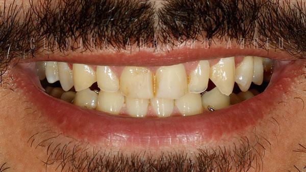 dentes desgastados e envelhecidos sorriso inicio