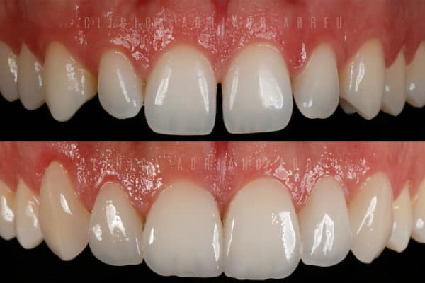 dentes-pequenos-aumento-com-lentes-de-contato-dentais-2