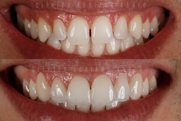 dentes-pequenos-aumento-com-lentes-de-contato-dentais-3