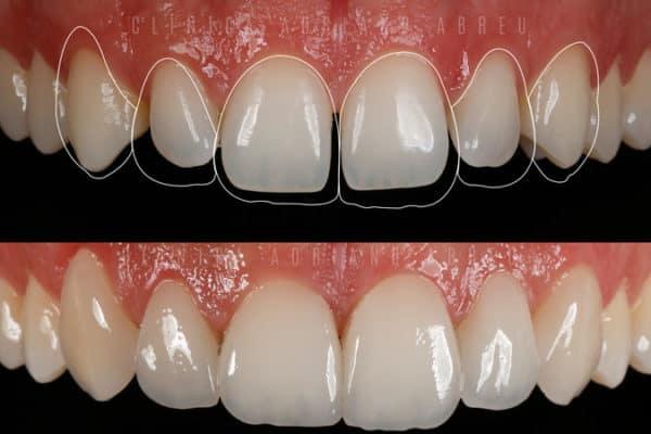 dentes-pequenos-aumento-com-lentes-de-contato-dentais