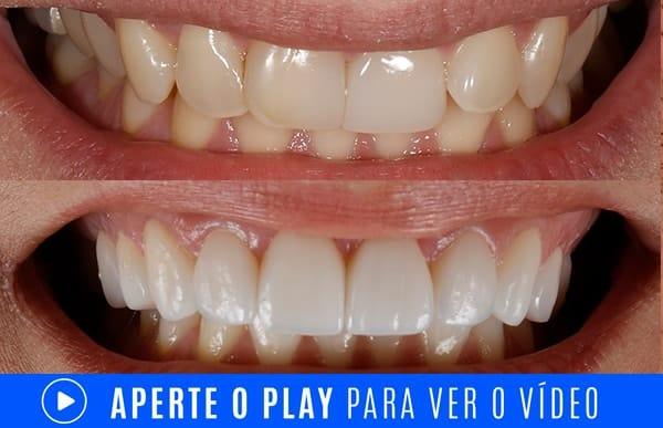 dentes tortos video min