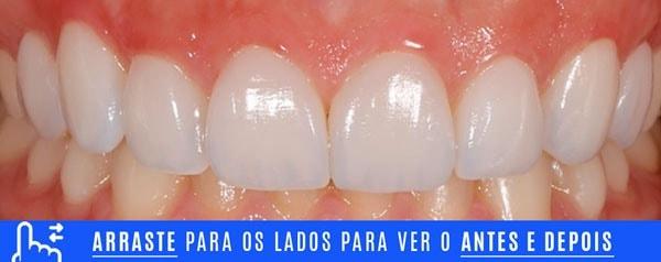 final DENTES TORTOS tratamento com laminados ceramicos