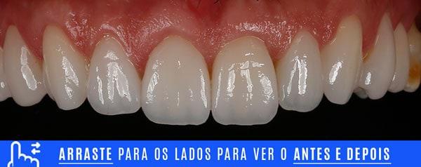 final dentes desgastados tratamento com laminados ceramicos