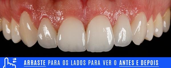 final dentes pequenos aumento com lentes de contato dentais