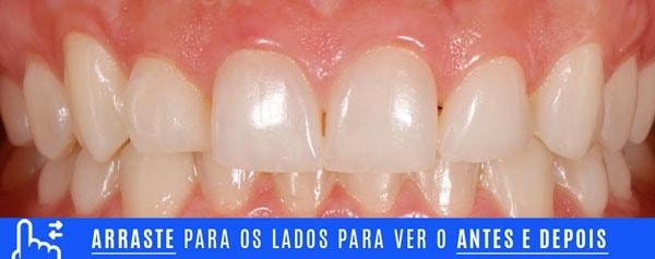 inicial DENTES TORTOS tratamento com laminados ceramicos