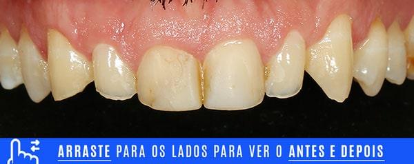 inicial dentes desgastados tratamento com laminados ceramicos