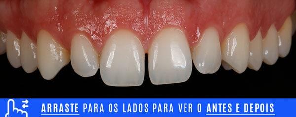 inicial dentes pequenos aumento com lentes de contato dentais