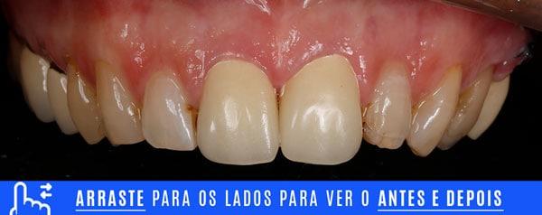 inicialINTRA dentes com resinas escuras ou envelhecidas