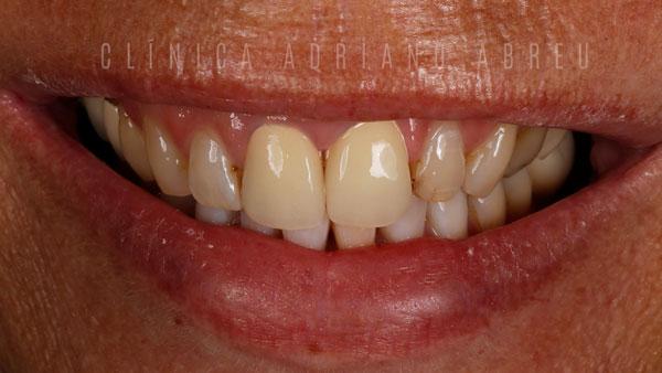 inicialsorriso dentes com resinas escuras ou envelhecidas