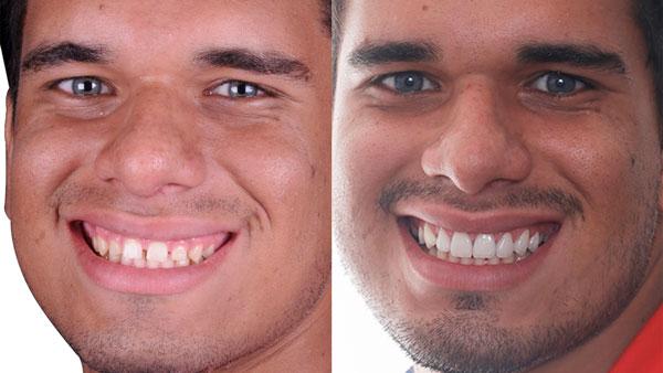 lateral-rosto-SORRISO-COM-APARENCIA-INFANTIL