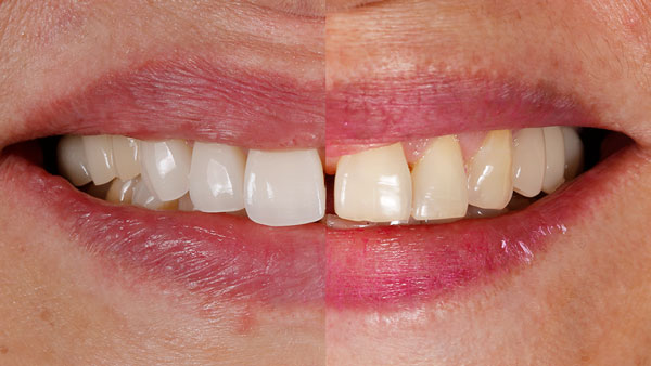 lentes-de-contato-dentais-DENTES-SEPARADOS
