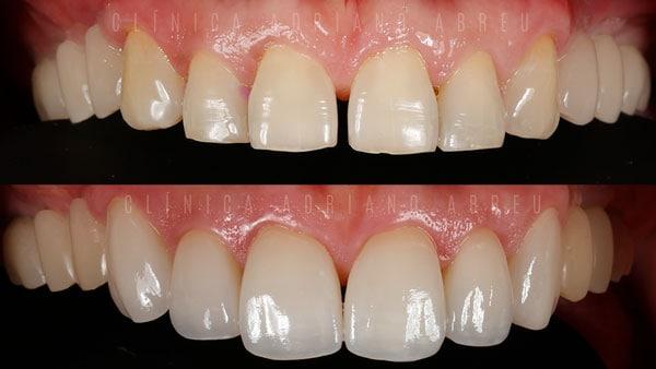 lentes-de-contato-dentais-fortaleza-DENTES-SEPARADOS