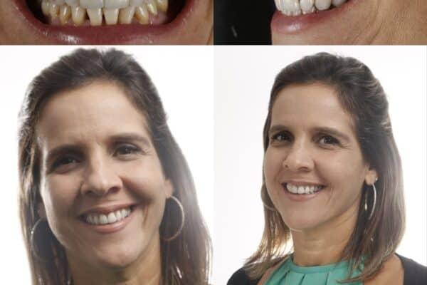 Tratamento para dimunuir os dentes -antes e depois