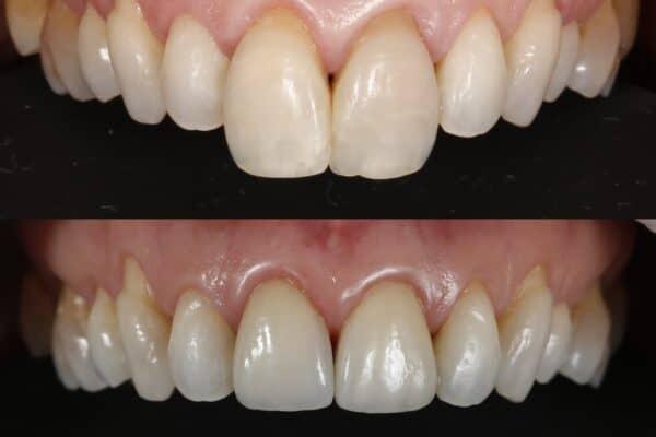 Tratamento para diminuir tamanho dos dentes