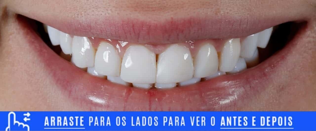 Lentes de contato dental mal adaptadas - antes e depois
