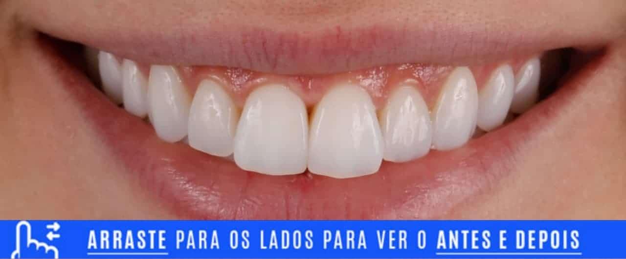 Lentes de contato dental refeitas