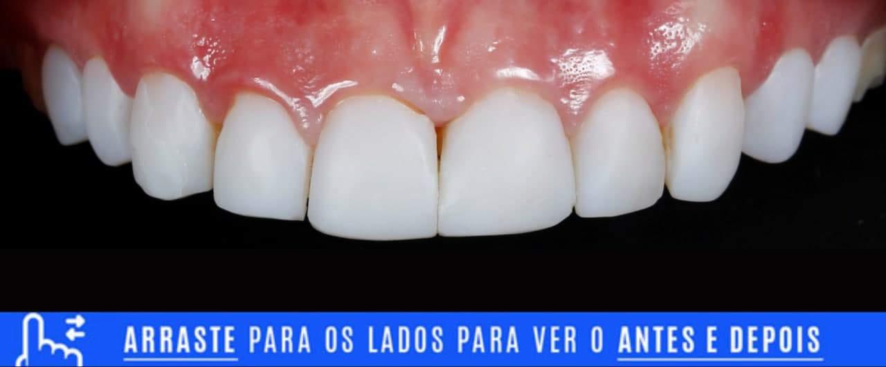 Lentes de contato dental mal adaptadas