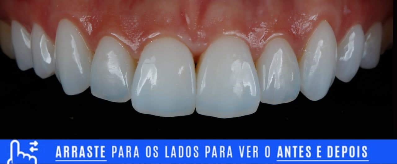 Lentes de contato dental instaladas