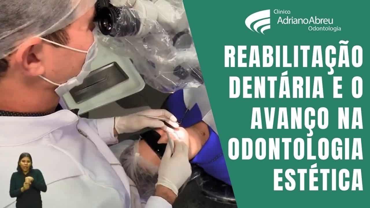 Reabilitação dentária e o avanço na odontologia estética