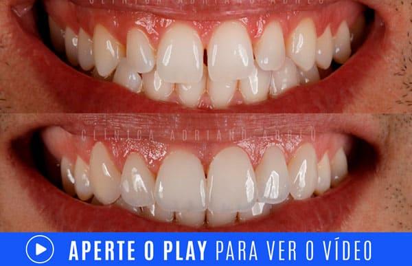 video dentes pequenos aumento com lentes de contato dentais 3