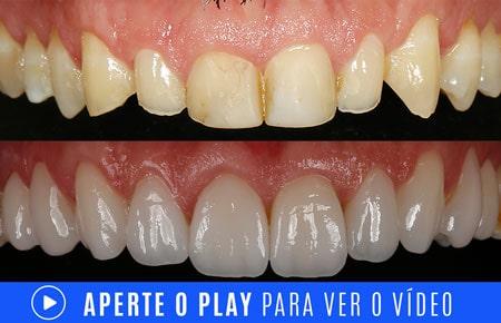 video tratamento de dentes desgastados com lentes de contato dentais